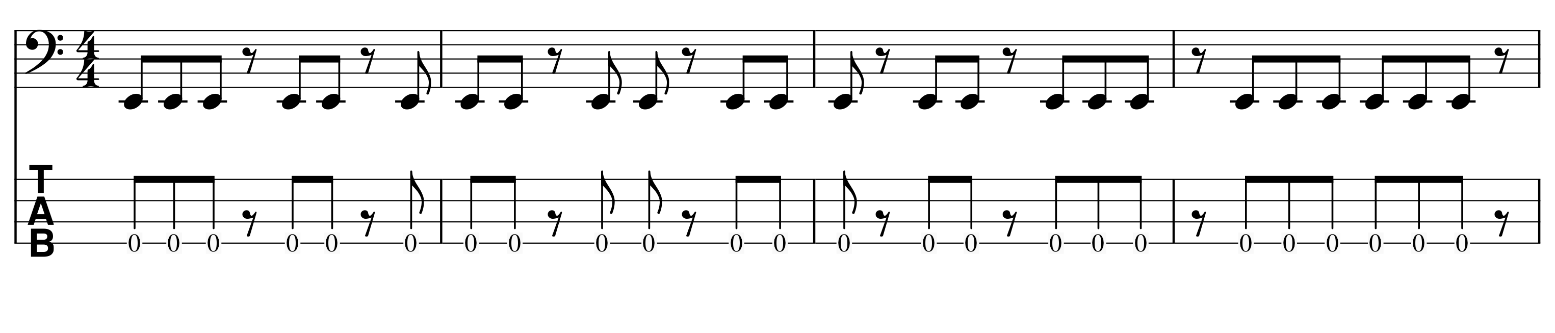 eight-note-rest